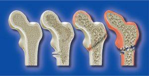骨质疏松症 海藻钙-截面图