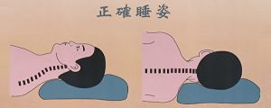 落枕治疗_2