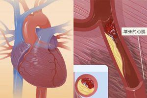 心肌梗塞_1